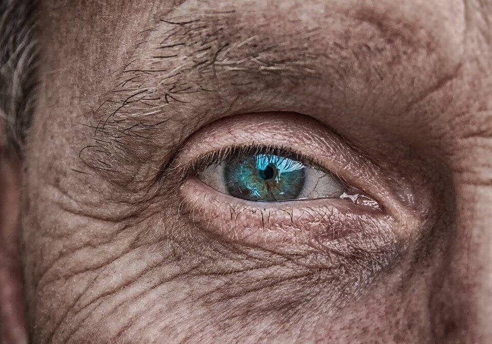 Cara Menghilangkan Keriput Di Wajah Dengan Cara Mudah