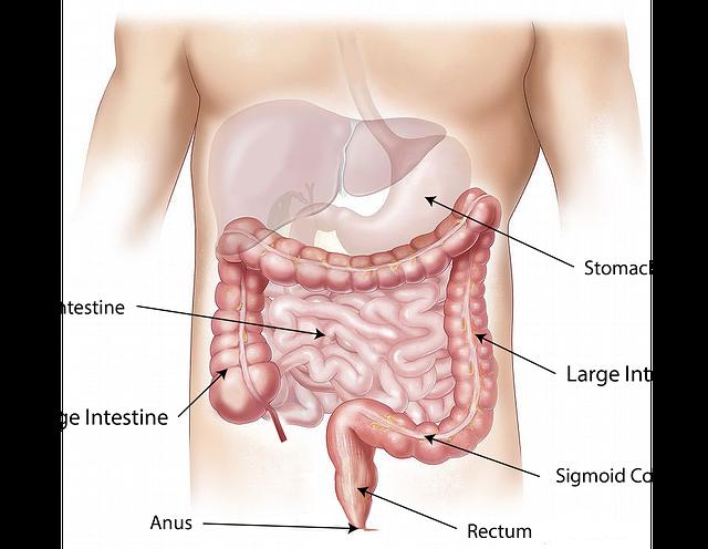 Sakit perut bagian bawah
